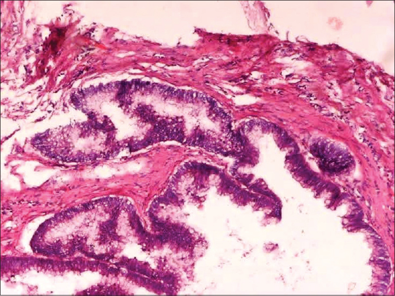 Figure 2: Mucinous neoplasm showing invasion of muscle layer of appendix by malignant mucinous glands (H and E, ×10)